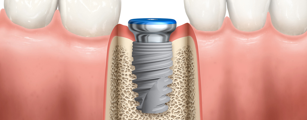 How to optimize the dental implant emergence profile