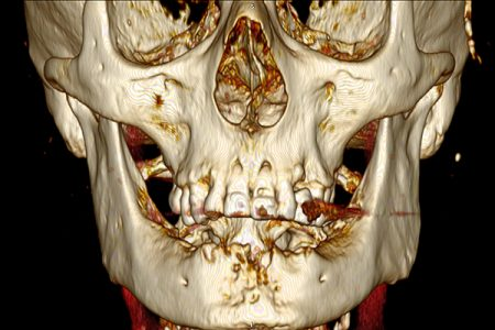 adult craniofacial changes