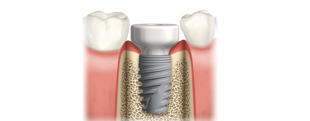 Why you should not reuse a healing abutment