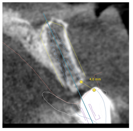CBCT scan and superimposed wax up to help virtually place implant – prosthetically driven planning.