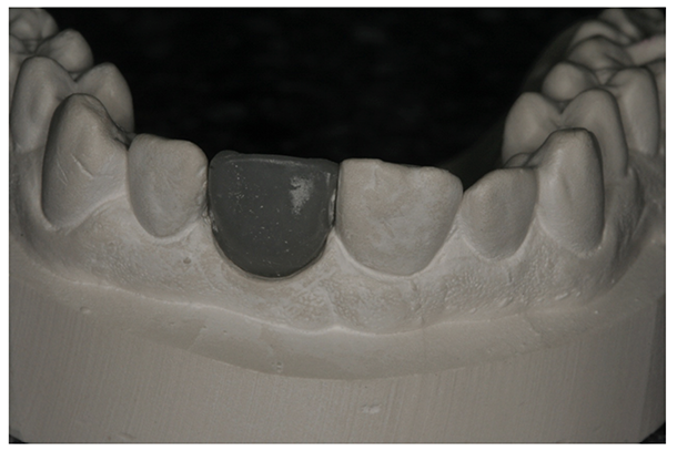 Wax up of proposed final tooth.