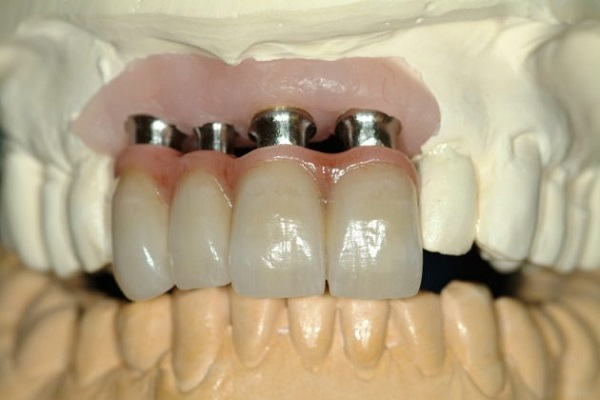 A fast, inexpensive, simple technique, this approach limits excess cement to an absolute minimum, and makes cleanup quicker and easier. The CCA can be used for custom, stock and even multiple abutments!