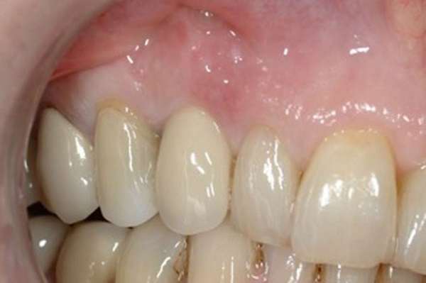 Patient five years after the crown was cemented