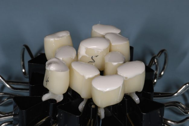 Actual photo of how some dentists loaded crowns with cement as if they were to be placed on implants in their offices!