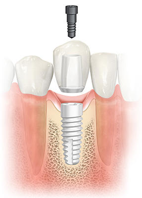NobelPearl: Two-piece ceramic dental implant