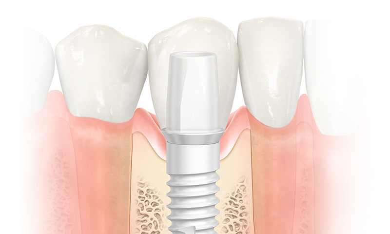 NobelPearl: A ceramic dental implant