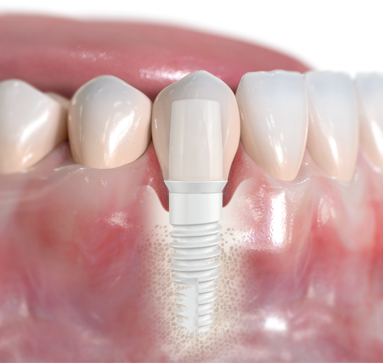 NobelPearl ceramic implant