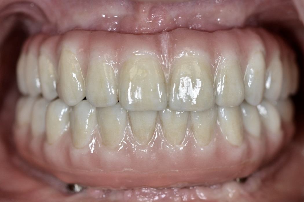 Full contour zirconia with All-on-4® treatment concept and Trefoil