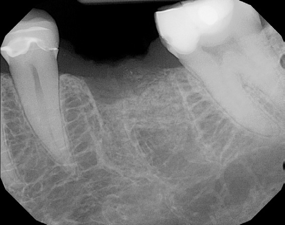 Pre-Operative radiograph of 36 edentulous site.