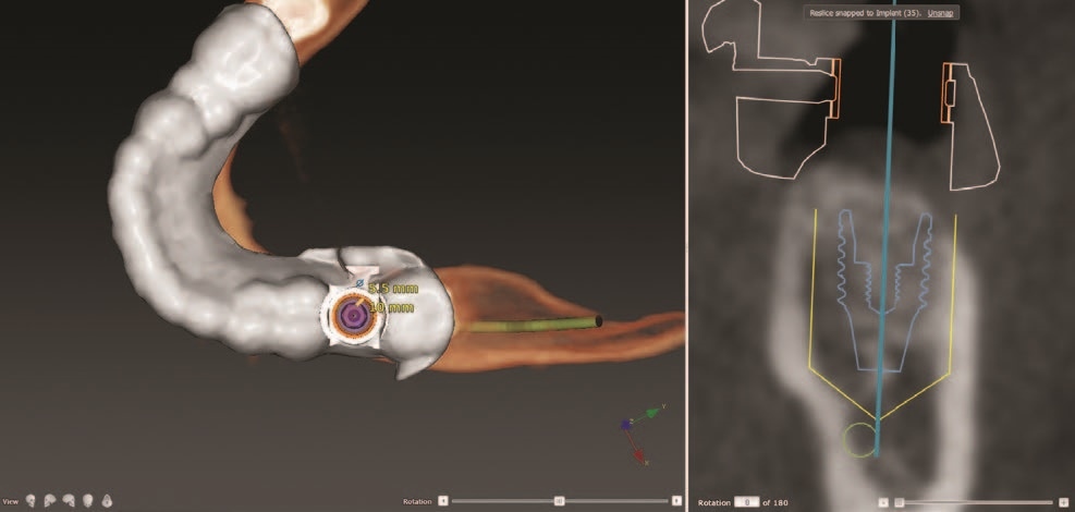 Dental implant fully guided surgical protocol