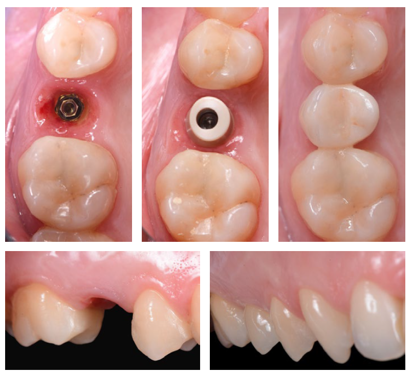 Implant surface clinical study