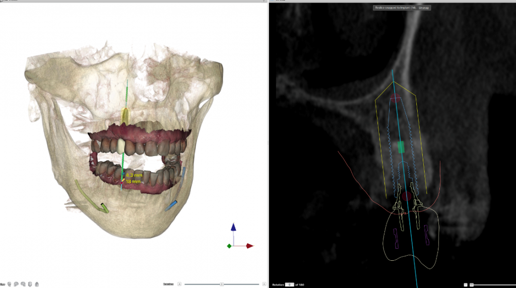 Dental implant planning to avoid implant failure