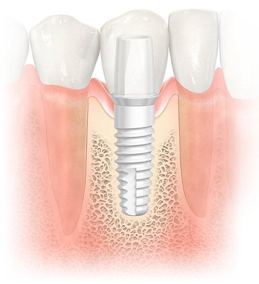 NobelPearl ceramic implant for natural esthetics