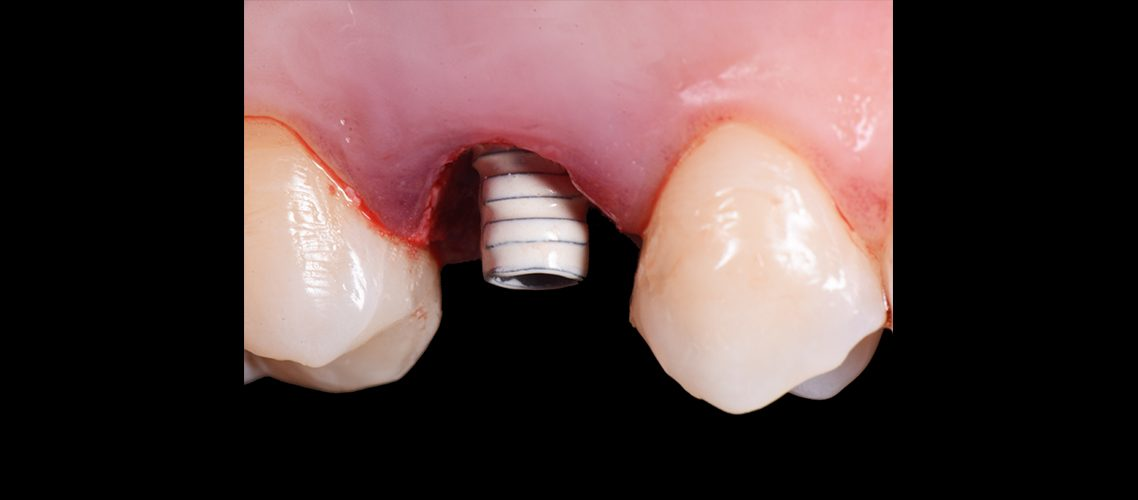 On1 Temporary Abutment − lateral view
